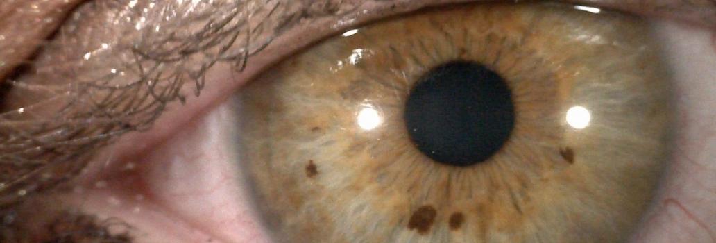 La Tecnica Iridologica. Come si guarda un occhio? Ovvero, come opera un iridologo.